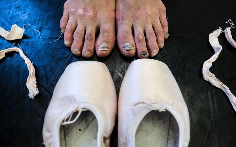 Ноги у балерин в мозолях и с черными ногтями.