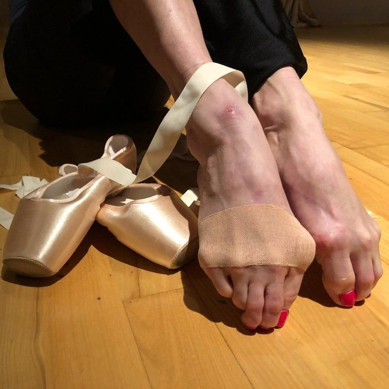 Ноги балерины - какие травмы скрываются под пуантами?